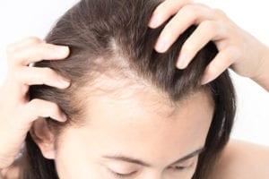 woman hair loss 300x200 2