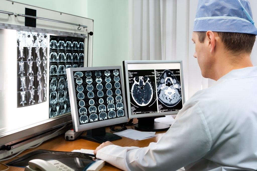brain injury diagnosis